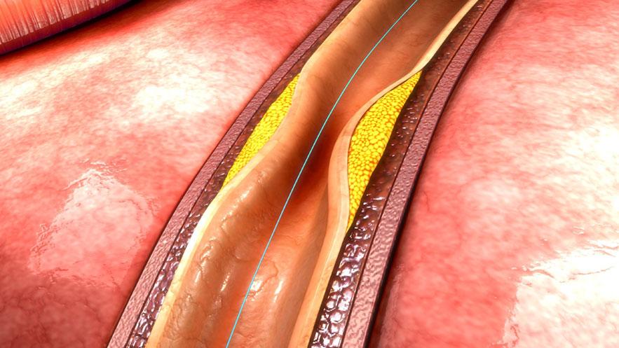 implant_stent_slider_1a