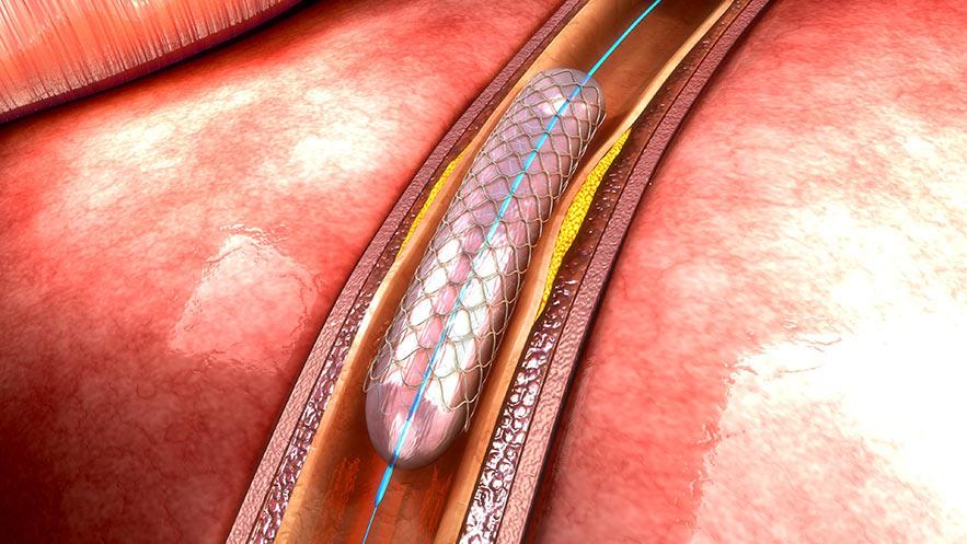implant_stent_slider_2a