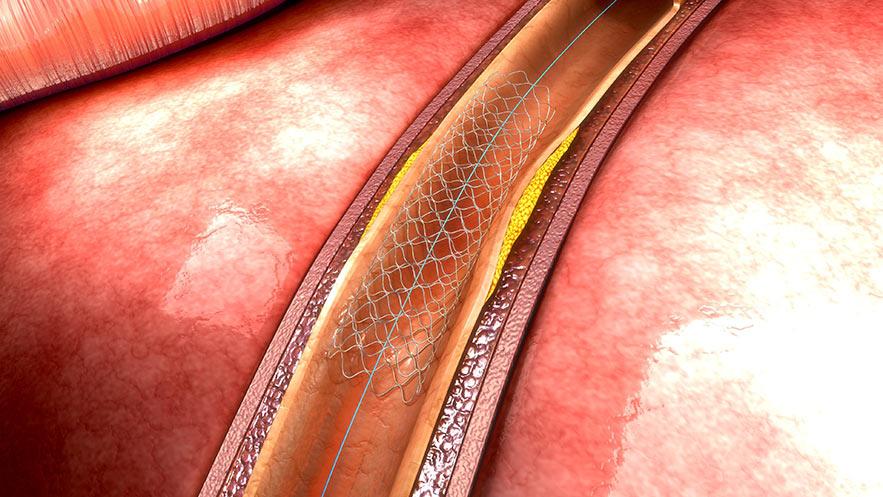 implant_stent_slider_3a