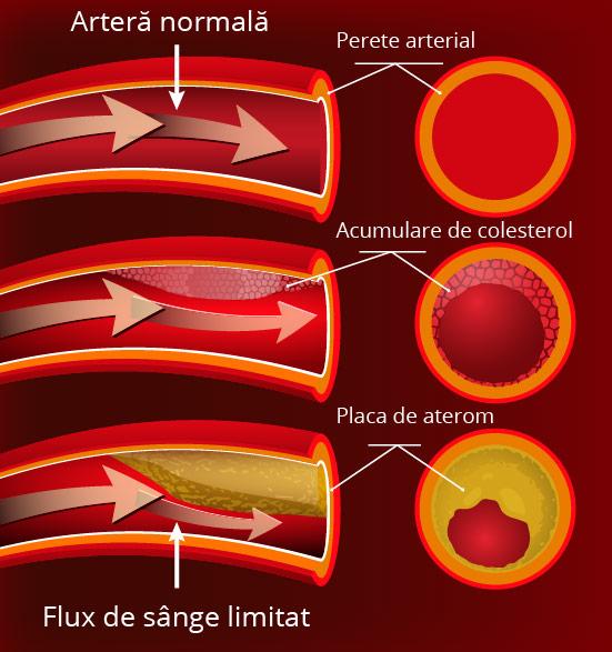boala coronariană provoacă pierderea în greutate